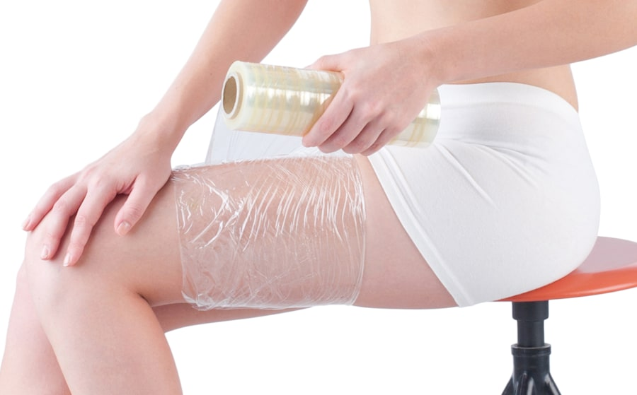 Plastic wrap should be applied to the burn after running it under cold