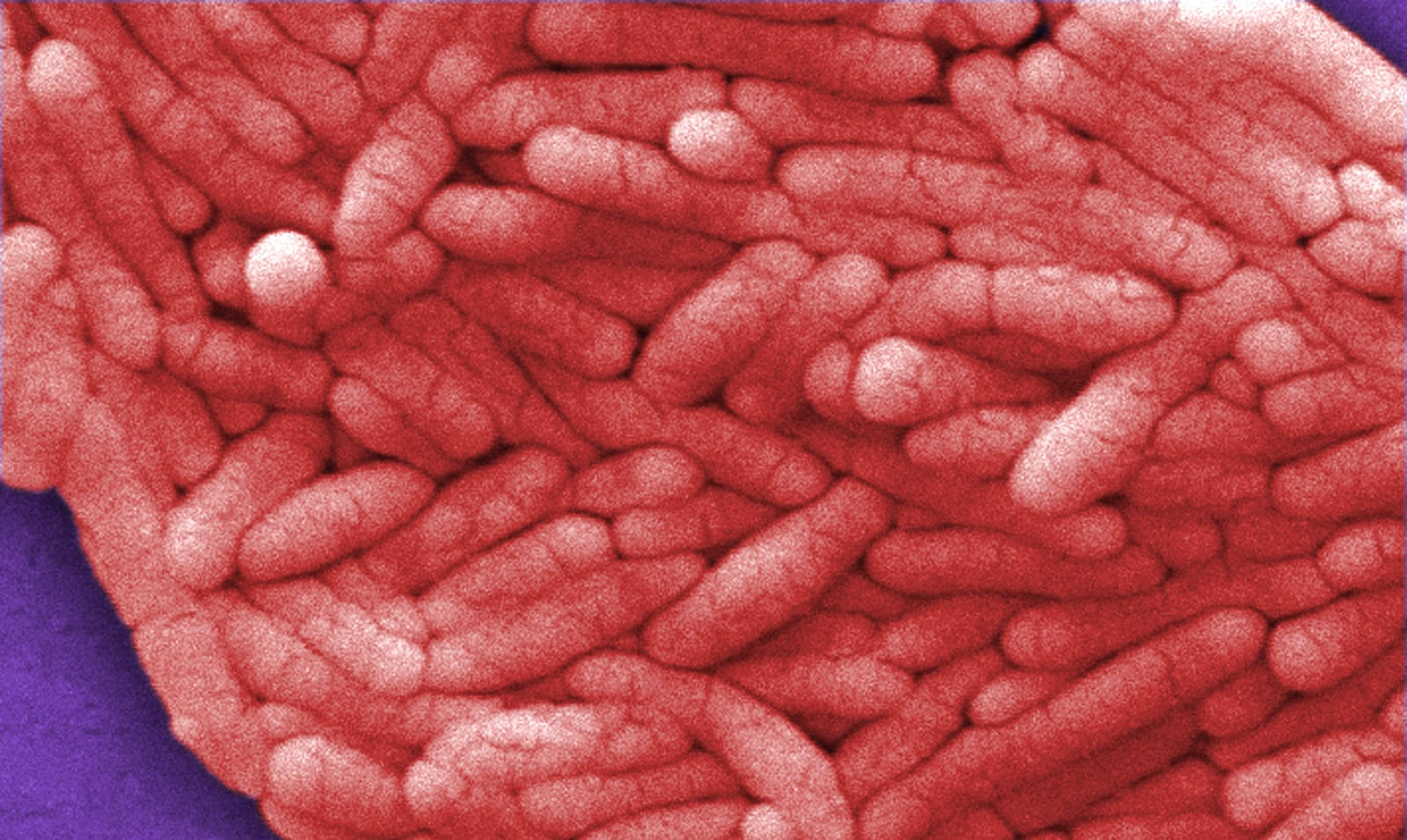 Researchers genetically engineer Salmonella to eat brain tumors