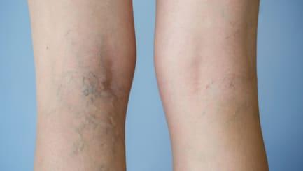Varicose veins on a leg