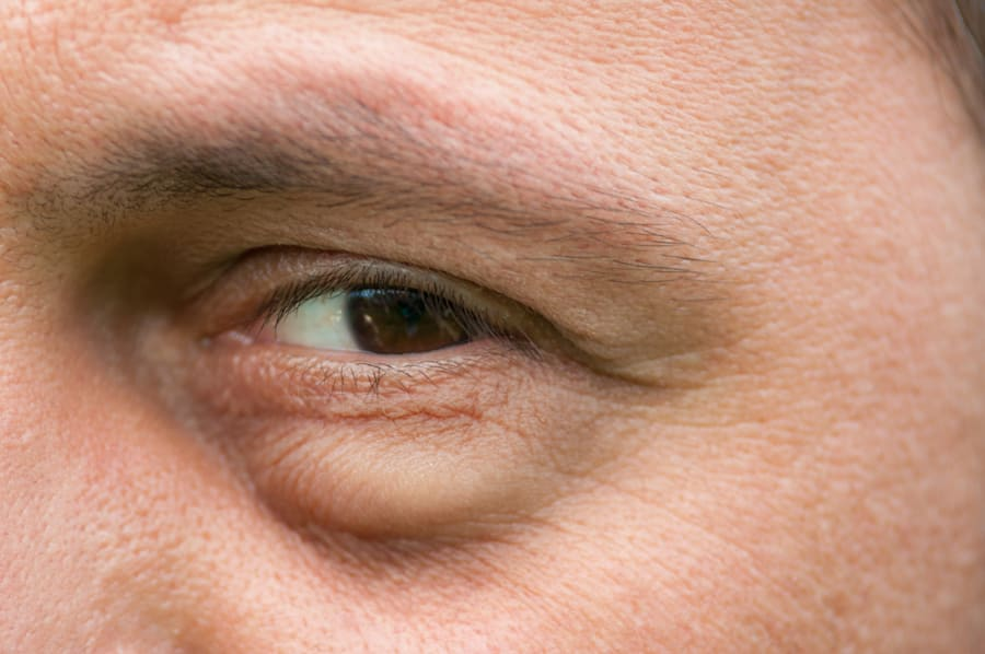 Eye bags can become weaker or can pop out with