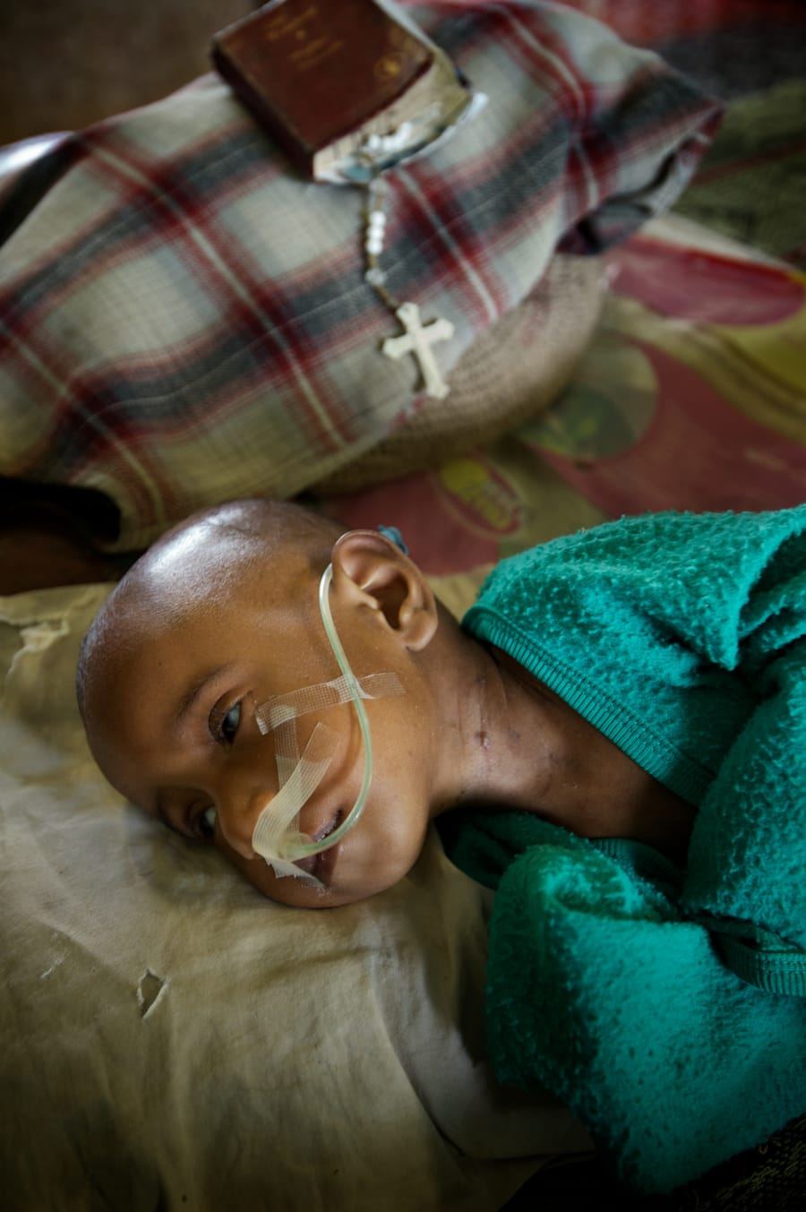 """""""It's no wonder that the disease is taking hold."""" Seven-month-old Felina is treated for TB..."""