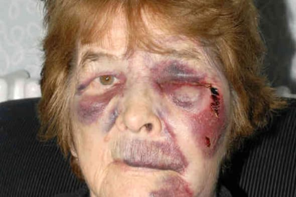 Undated handout photo issued by West Yorkshire police of Sabina Harrison who suffered horrific facial injuries when a gang snatched her handbag in broad daylight. PRESS ASSOCIATION Photo. Issue date: Monday March 31, 2014. Grandmother Sabina Harrison, 78, was left with severe bruising after they yanked the bag from her shoulder, causing her to fall down and hit her head. The four youths then ran off, leaving her on the ground. She needed hospital treatment for facial injuries and other bruising. See PA story POLICE Pensioner. Photo credit should read: West Yorkshire Police/PA WireNOTE TO EDITORS: This handout photo may only be used in for editorial reporting purposes for the contemporaneous illustration of events, things or the people in the image or facts mentioned in the caption. Reuse of the picture may require further permission from the copyright holder.