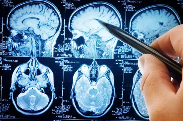magnetic resonance image (MRI) of the brain