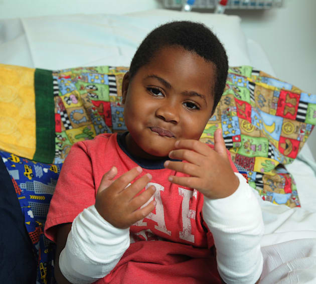First Child Recipient Of Double Hand Transplant Celebrates 2 Years