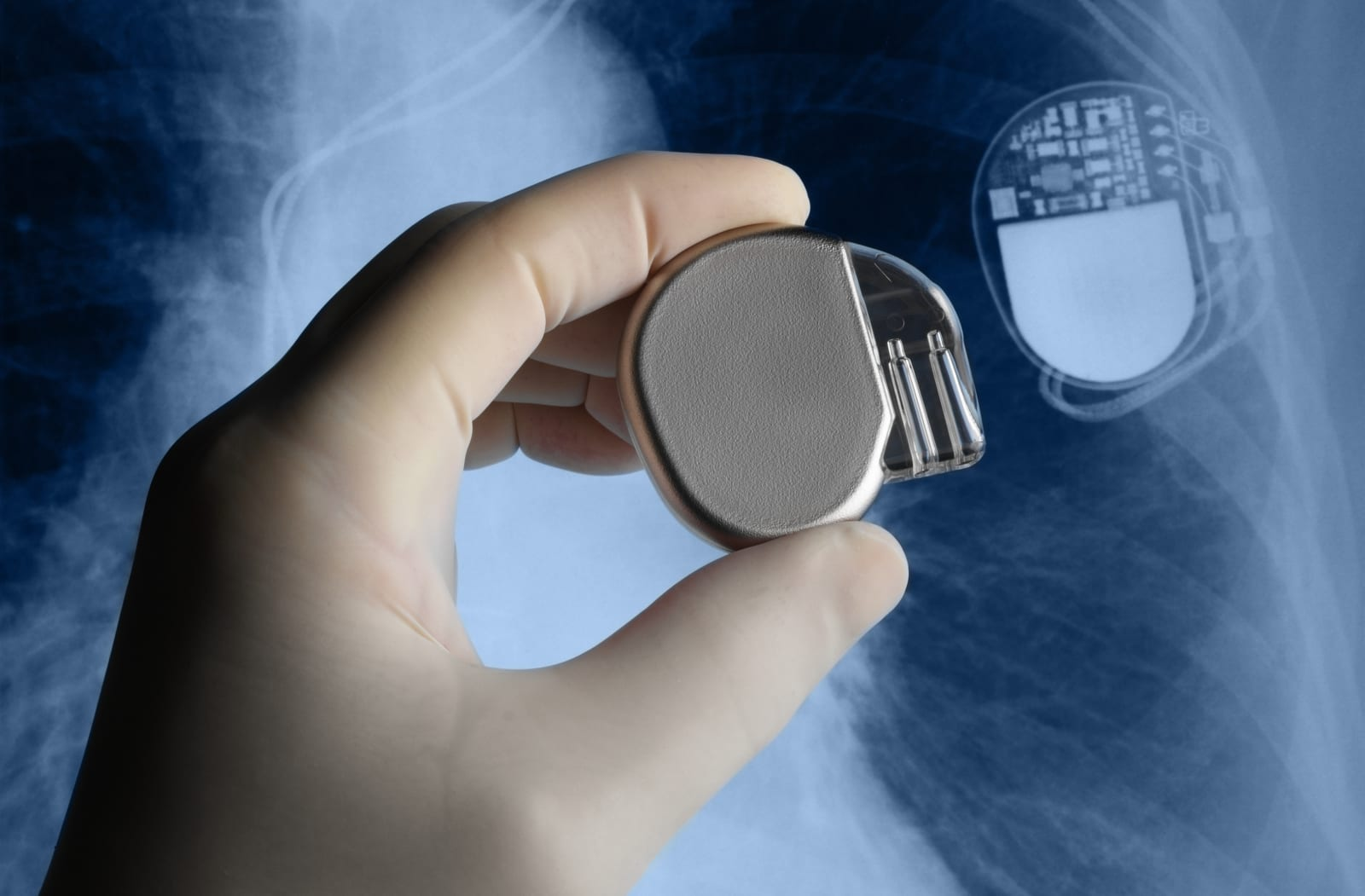 Pacemakers are far more vulnerable to hacking than we thought