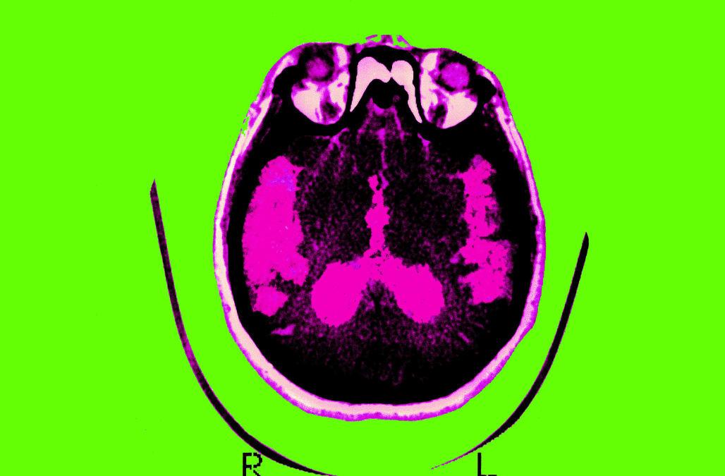 Alzheimer'S Disease, Scan