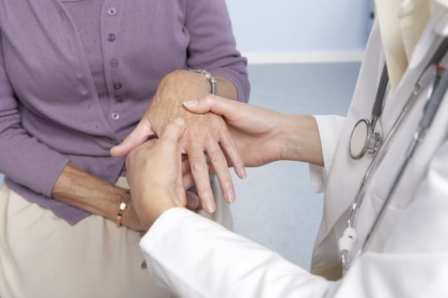 Rheumatoid arthritis. General practitioner examining a patient's hand for signs of rheumatoid arthritis. This condition is cause