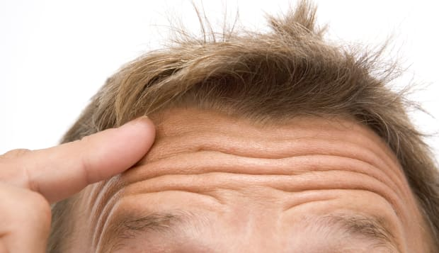 Man with finger on forehead