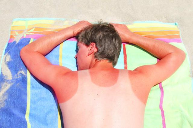 Adult male with sunburnt vest mark