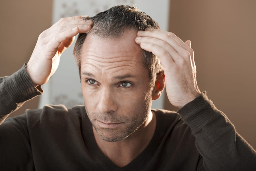 In men, hair loss is often first noticeable around the