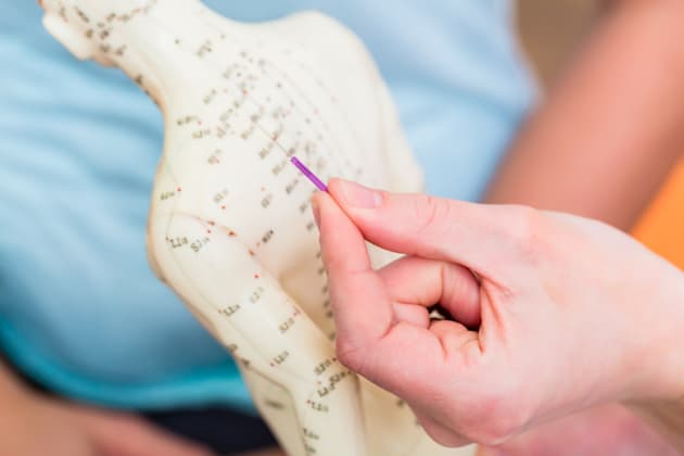 Acupuncture Found To Be Potentially Effective Weight Loss