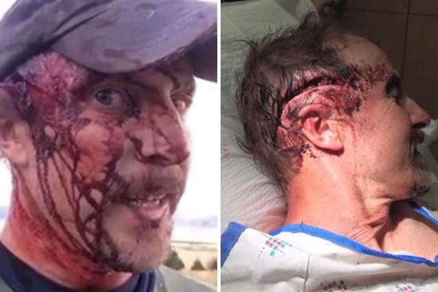 Man survives two bear attacks in same day