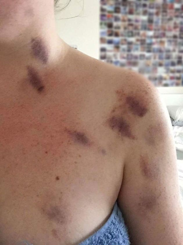 The photo posted online, claiming to show the injuries caused in the alleged