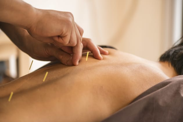 Manual acupuncture had the best