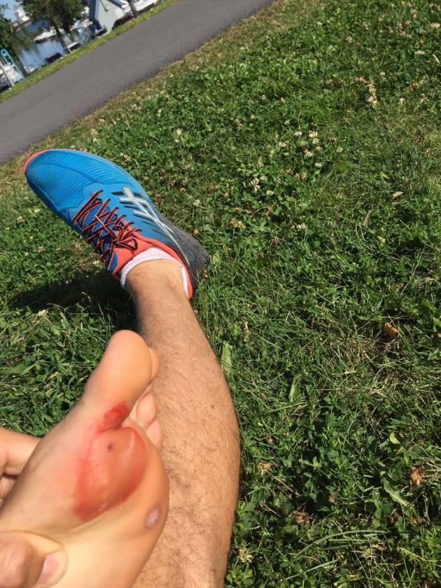 Un coureur se blesse sur un dangereux piège installé sur une piste cyclable à