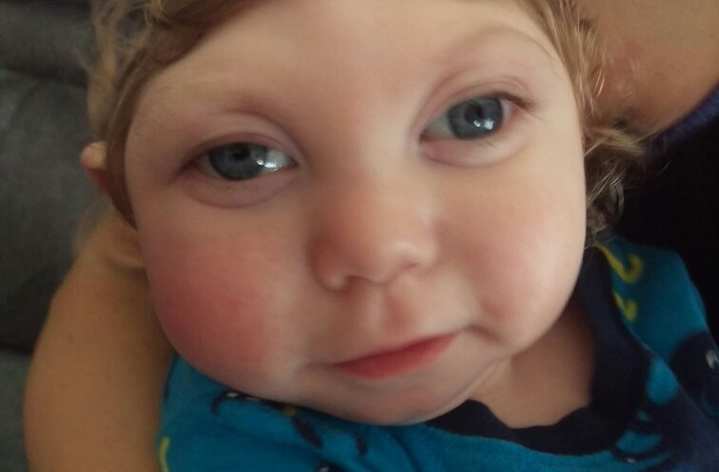 Parents of 'miracle baby' with microcephaly speak out amid ...