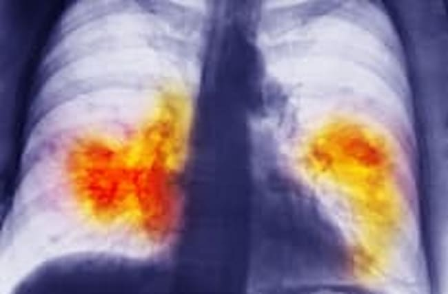New test can detect signs of lung cancer years before a scan