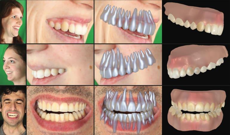 Disney can digitally recreate your teeth