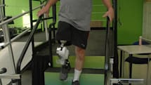 Bionic leg climbs stairs with ease