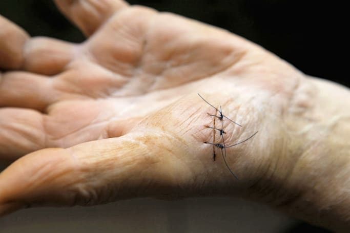Smart sutures can monitor wounds as they heal