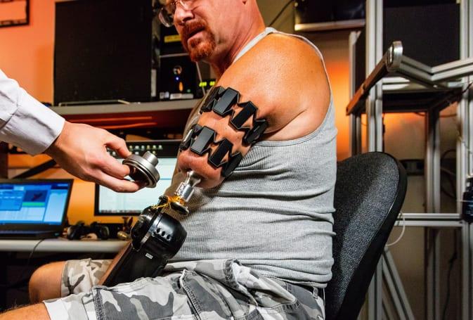Researchers use Myo muscle-sensing wearable for prosthetics