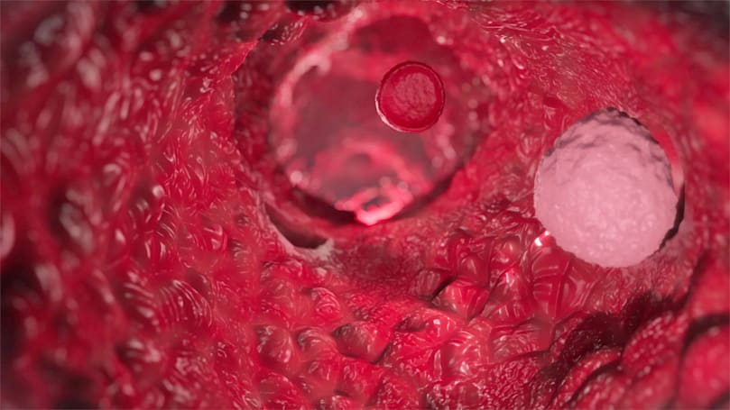 See the unusual way cancer cells spread