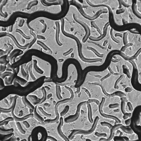Researchers remotely control worms using magnetic nanoparticles, tomorrow: people?