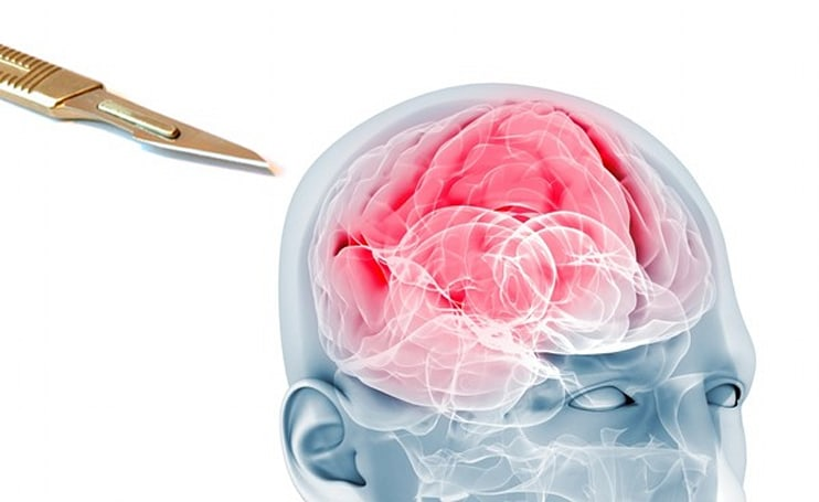 Another reason to buy gold: nanoparticles help to kill brain tumors