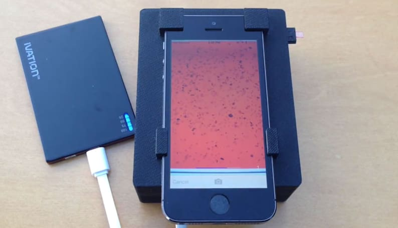 Scientists turn an iPhone into a blood parasite detector