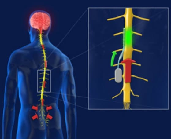 Chip implanted in spinal cord could help sufferers of chronic pain (video)