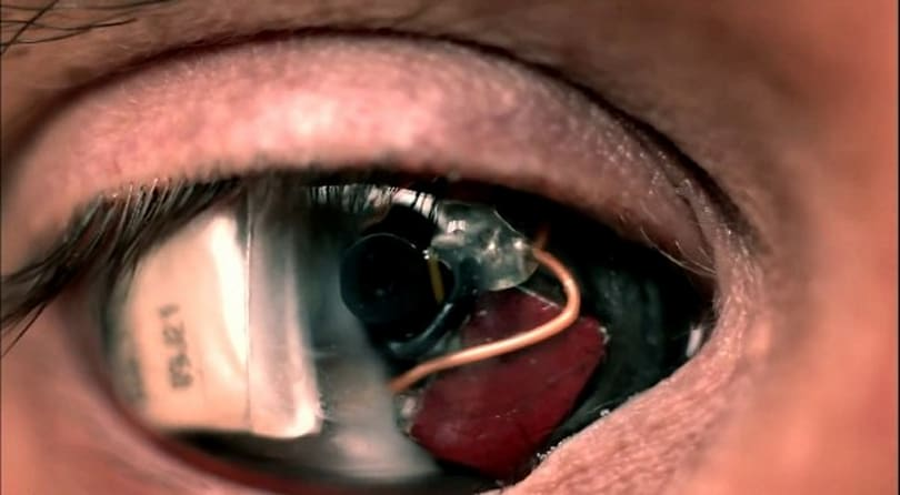 Eyeborg filmmaker fires up eye-cam to document cutting edge prosthetics (video)