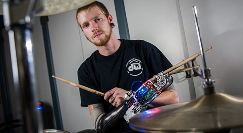 This robotic prosthesis gives drummers a third arm
