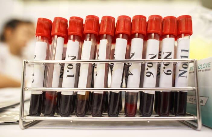 Australian researchers developed a blood test for Parkinson's