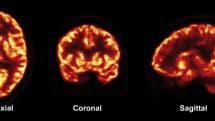 New imaging method reveals how Alzheimer's reshapes the brain