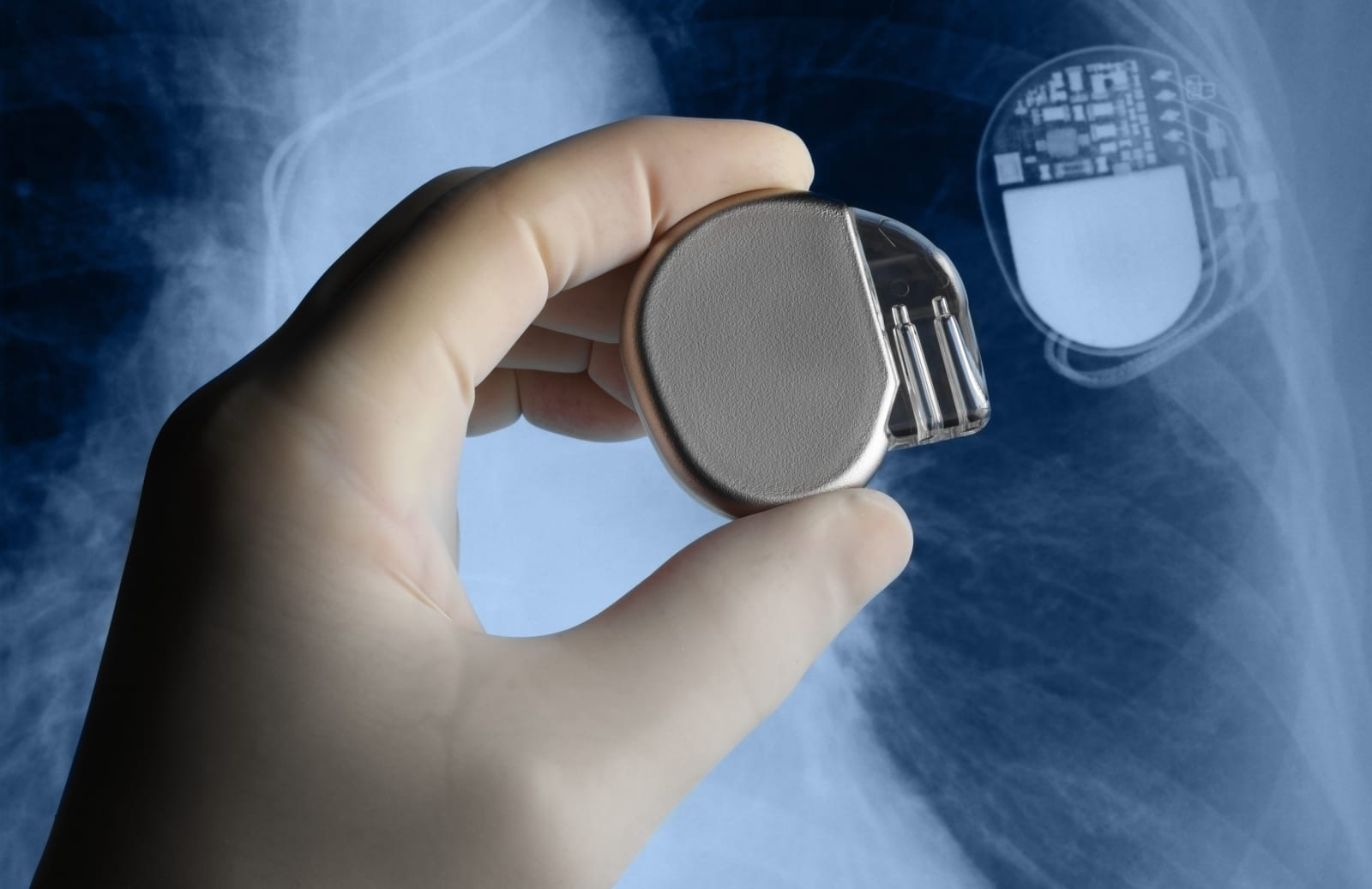 FDA issues final guidance on medical devices' cybersecurity
