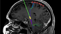 How electrifying the brain wards off Parkinson's disease