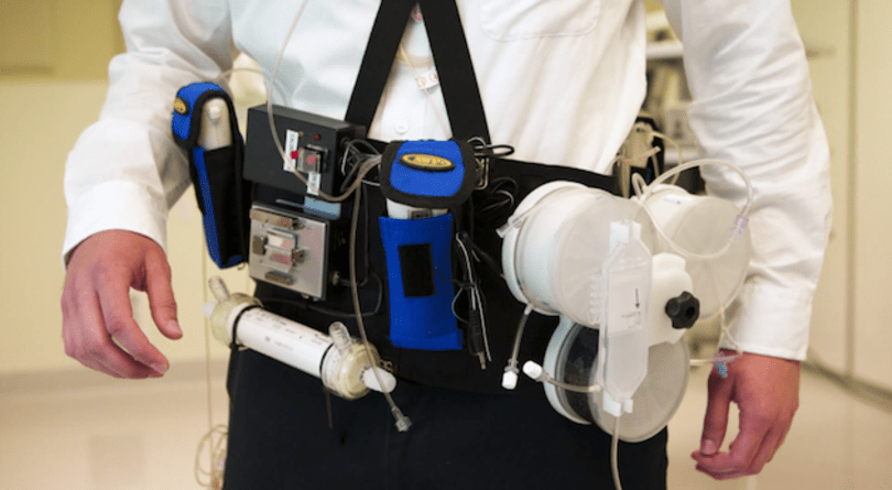 Wearable artificial kidney hopes to gain FDA approval soon