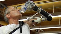 FDA approves a life-like prosthetic arm from the man who invented the Segway
