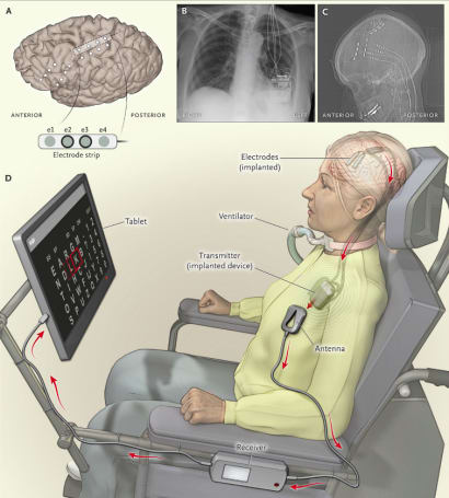 Brain implant helps a paralyzed woman communicate at home