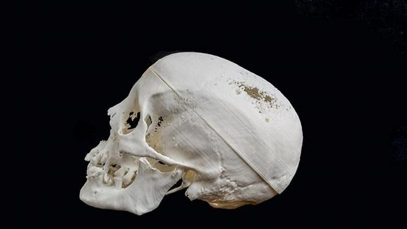 This mummy's skull was recreated via 3D printer