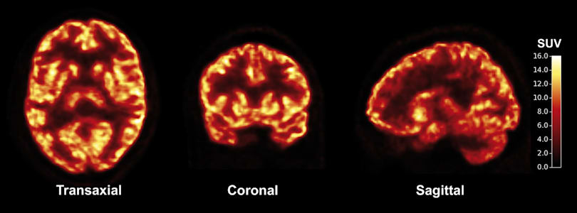 New imaging method reveals how Alzheimer's reshapes the brain