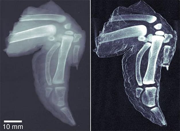 """X-rays get boost from """"dark field"""" technology"""