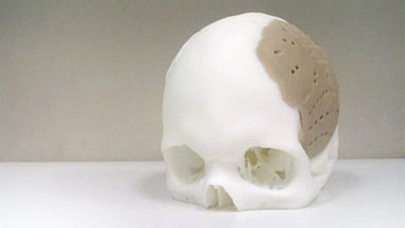 Patient has 75 percent of his skull replaced with 3D-printed prosthetic
