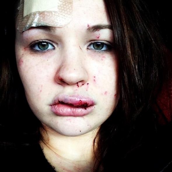 teen-driver-christie-councer-thrown-20ft-car-hit-pothole-gloucester