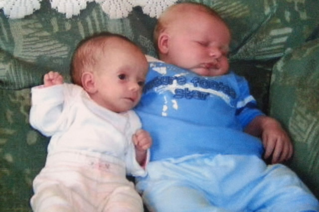 Rare Dwarfism Condition Means Maci 6 Is Smaller Than A