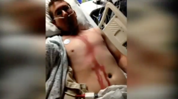 Man survives lightning strike to head on camping trip