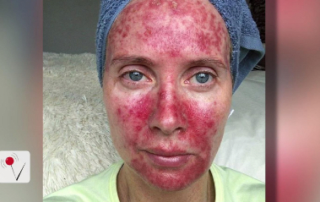 Woman shares scary tanning bed selfies