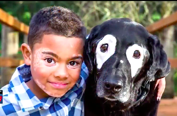 8 year old boy with rare skin disease meets dog with the same despite being human and dog carter and rowdy bond over white markings they both have around their eyes as photographed by sit stay pet photography publicscrutiny Choice Image