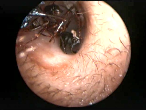 Girl's ear infested with giant ants' nest (video)