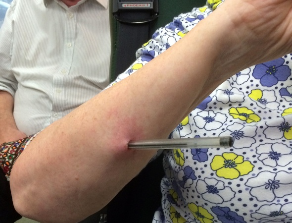 Woman stabbed with pen on coach trip